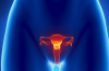 Проблемы женской репродуктивной системы – синдром гиперандрогении