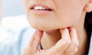 Причины и симптомы диффузного токсического зоба у взрослых и детей