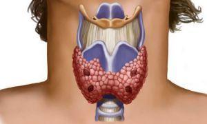 Симптоматика и диагностика многоузлового зоба