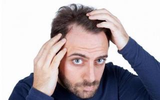 Влияние уровня тестостерона на склонность к облысению