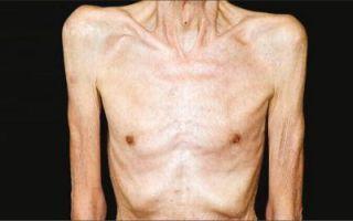 Причины, симптомы и способы лечения пангипопитуитаризма