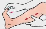Причины возникновения и симптомы гиперкальциемии