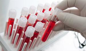 Исследование крови на гормоны во время простудных заболеваний