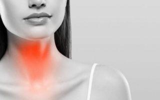 Причины появления и симптомы подострого тиреоидита