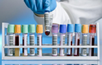 Методика сдачи крови на пролактин