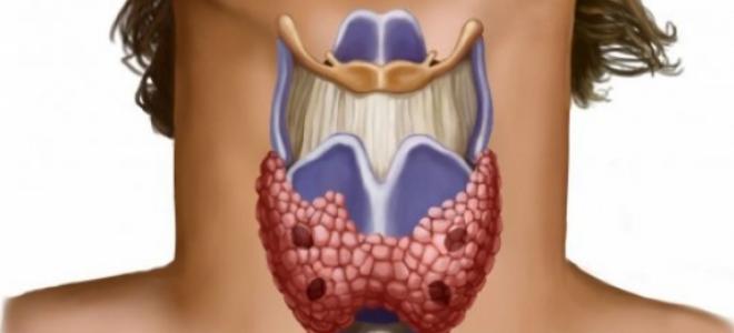 Диффузно-узловой тип зоба щитовидной железы