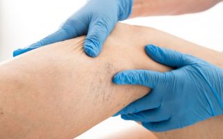 Чем опасны болезни суставов и как их лечить