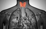Симптомы и способы диагностики хронического тиреоидита Хашимото
