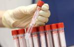 Анализ крови СА 125 — подготовка, значение, расшифровка