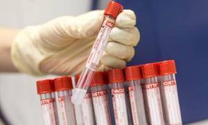 Анализ крови СА 125 – подготовка, значение, расшифровка