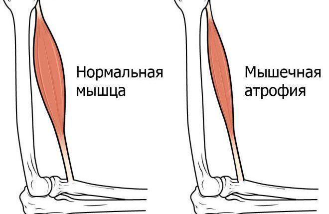 Атрофия мышц
