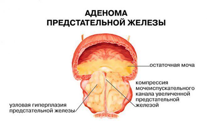 Гипоплазия простаты