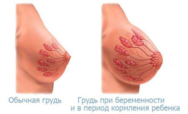Грудь до и после беременности