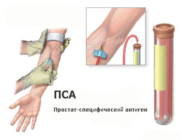 Анализ крови на простат специфический антиген