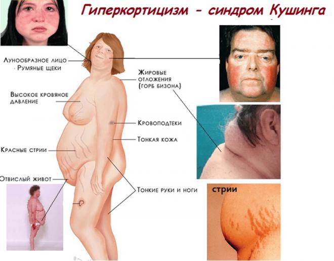 Кортизол повышен у женщин