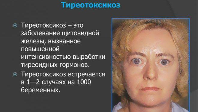 Л тироксин противопоказан при Тиреотоксикозе