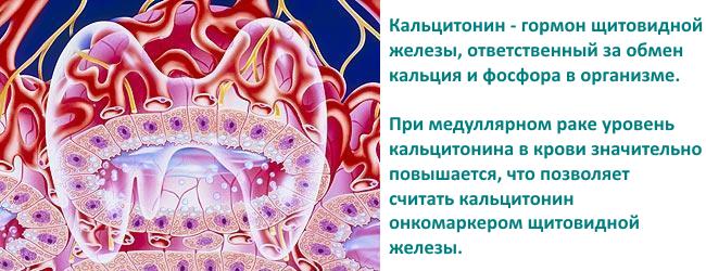 Модулярный рак