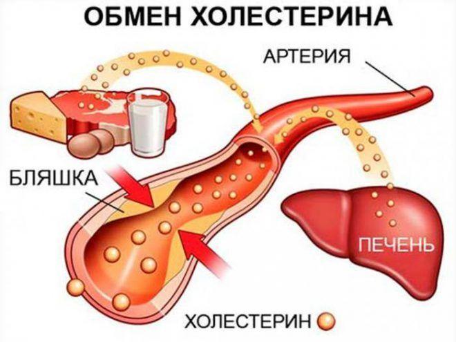 Обмен холестерина в крови