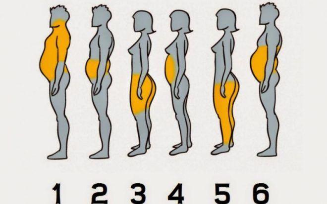 Ожирение по мужскому типу