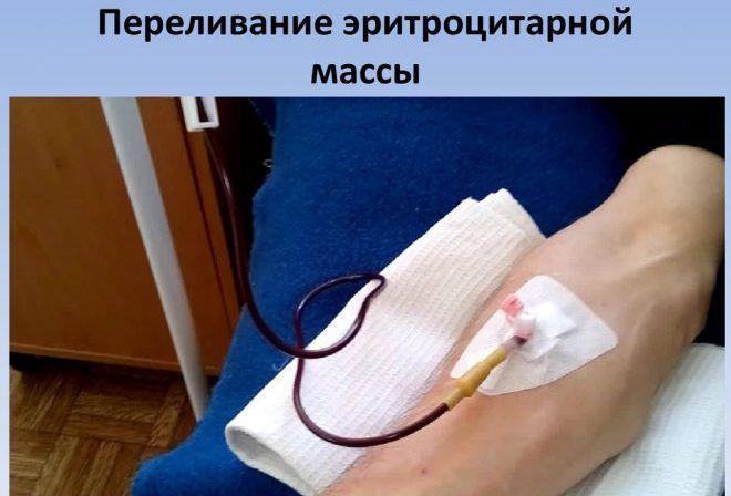 Переливание эритроцитарной массы