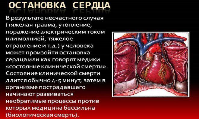 При остановке сердца рекомендуется ввести укол адреналина