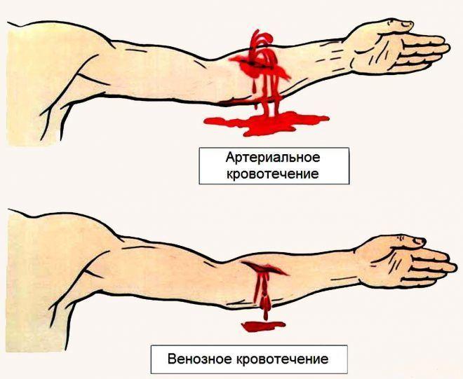 При сильных кровотечениях также показан адреналин