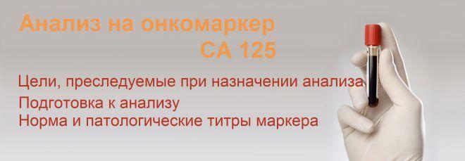 СА 125 анализ крови