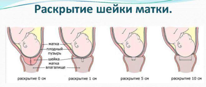 Содействие сокращению матки во время родов