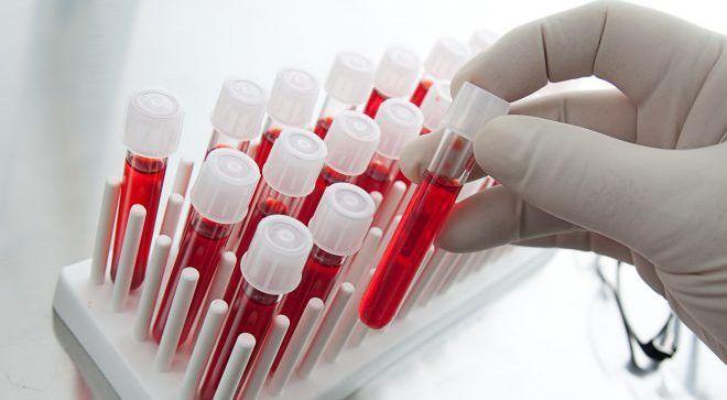 Содержание с-пептида в крови