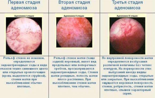 Стадии эндометриоза матки