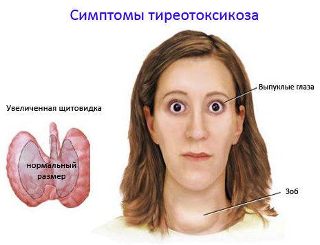 Тиреотоксикозе
