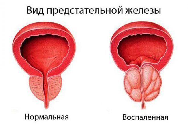 Вид предстательной железы