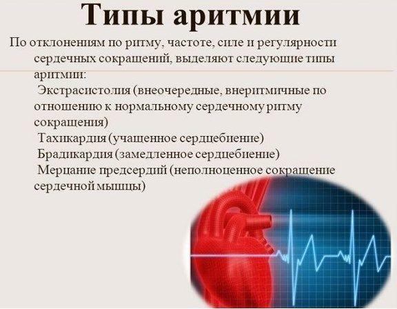 Виды аритмии