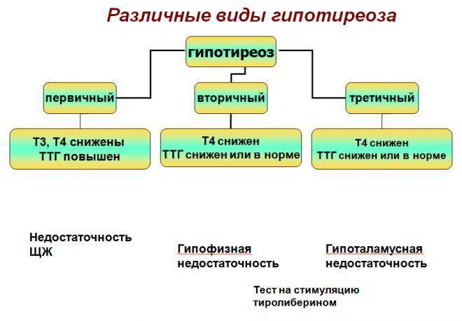 Виды гипотиреоза