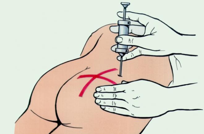 Как правильно сделать инъекции