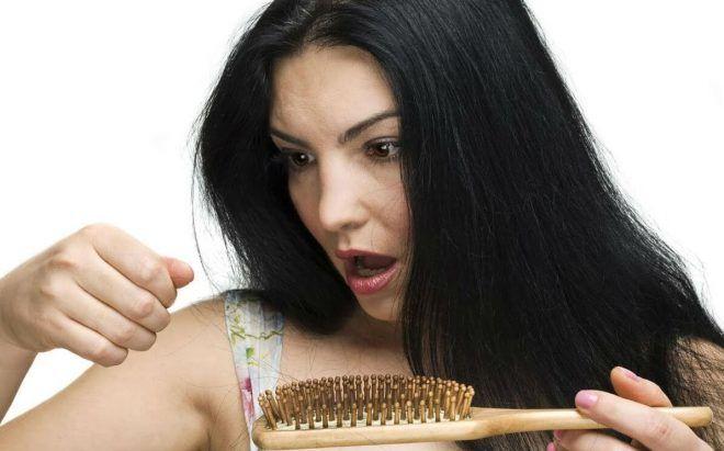 Выпадение волос в теменной части головы
