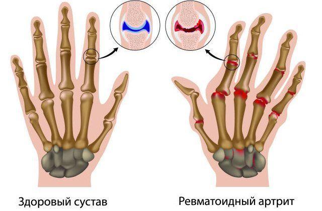 Здоровый и ревматоидный сустав