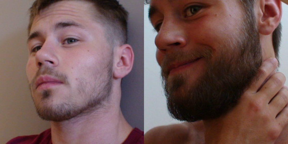 Как увеличить рост волос на лице у мужчин
