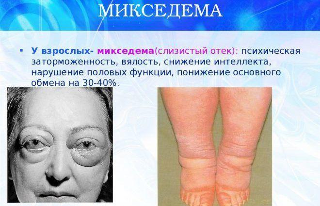Анатомия и физиология микседемы