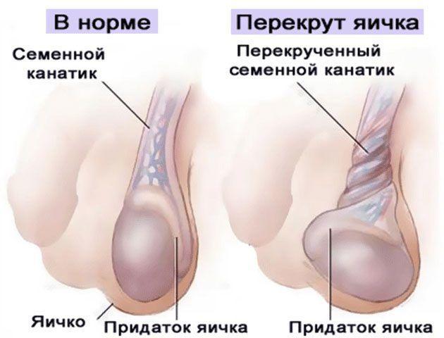 Атрофия яичек симптомы