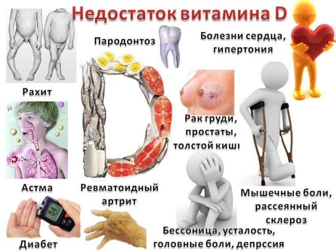 Дефицит Витамина D как причина гипокальциемии