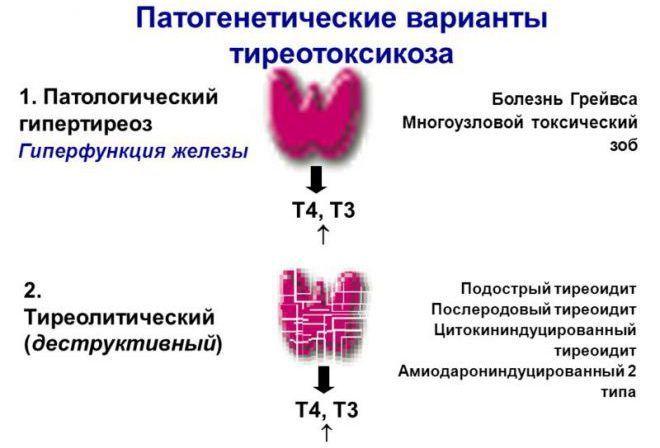 Диагностика тиреотоксикоза