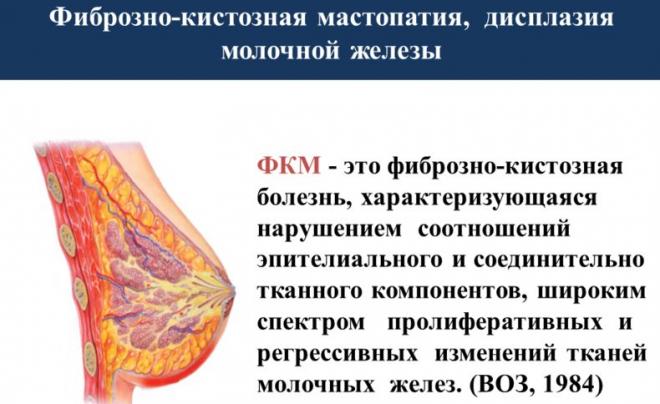 Диффузная фиброзная мастопатия молочной железы