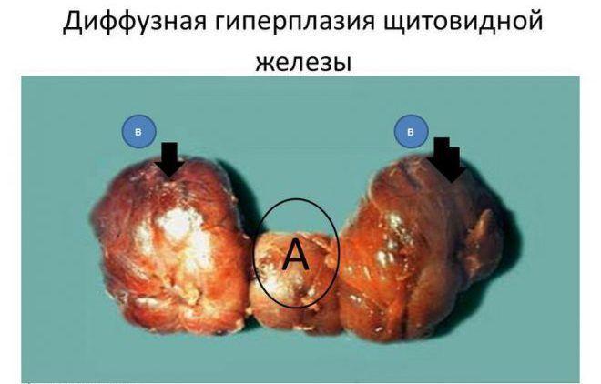 Диффузная гиперплазия щитовидной железы