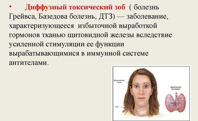 Диффузный токсический зоб у женщин
