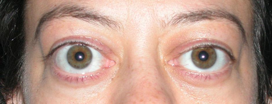 Экзофтальм выпучение глаз