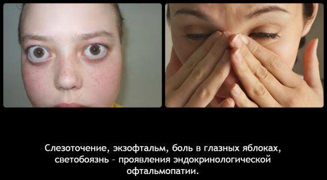 Эндокринологическая офтальмопатия