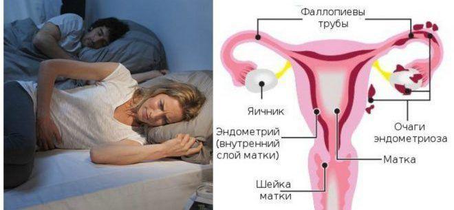 Какой врач лечит молочницу