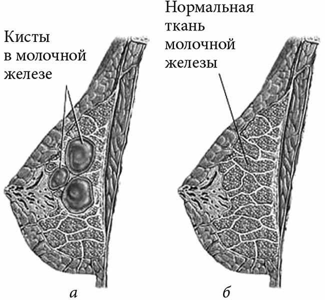 Фиброзный фиброаденоматоз молочной железы