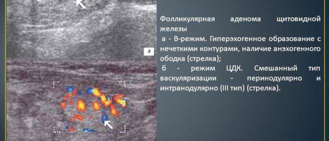 Фолликулярная аденома щитовидной